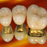 Captek Gold Crowns