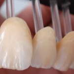 IPS Emax Crowns